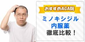 ミノキシジル内服薬徹底比較!!